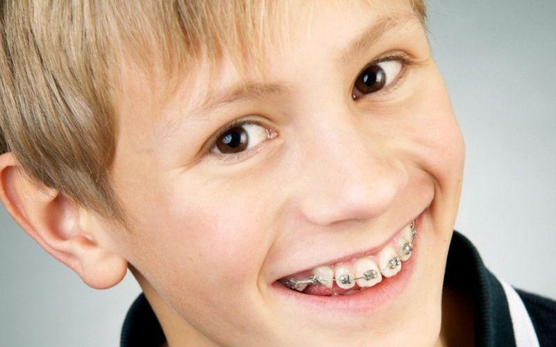 Khí cụ chỉnh nha quyết định phần lớn đến hiệu quả niềng răng