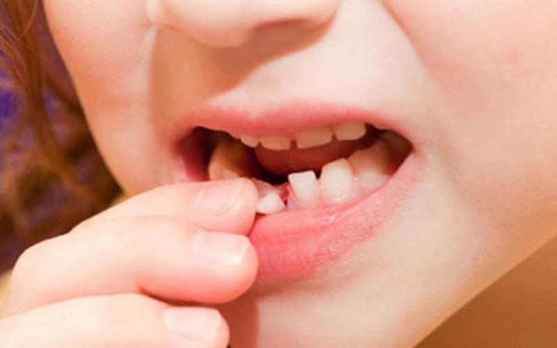 Sún răng khiến quá trình thay thế răng bị ảnh hưởng lớn