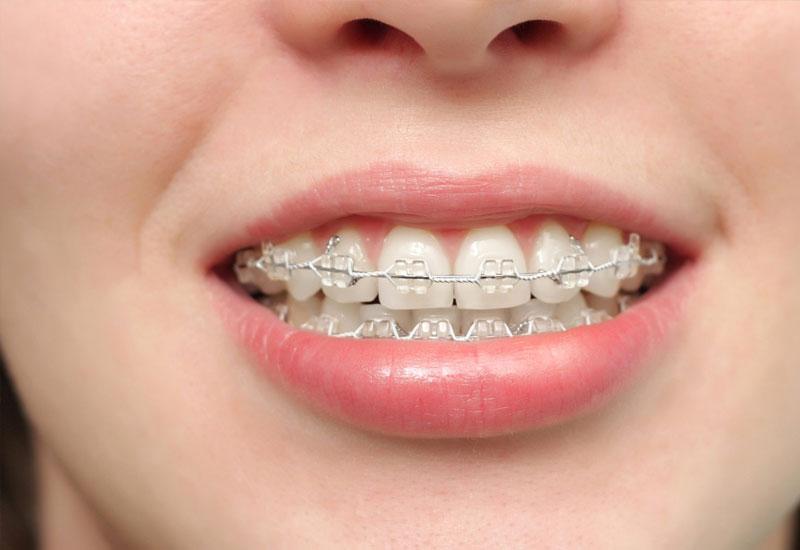 Niềng răng là biện pháp nắn chỉnh răng lệch lạc, lộn xộn khắc phục tình trạng vẩu, hô, móm