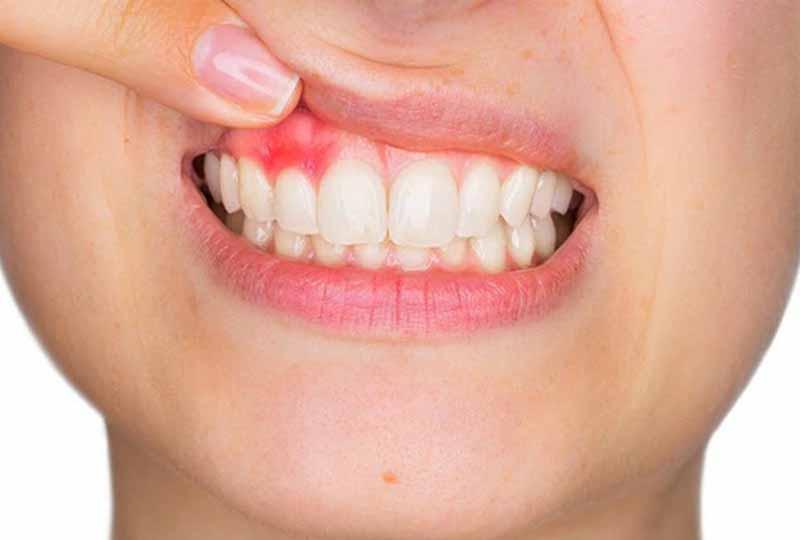 Hình ảnh viêm lợi - tình trạng mảng bám trên răng gây kích ứng, sưng tấy nướu