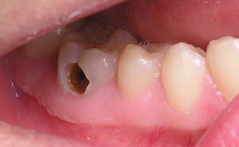 Áp xe quanh chóp răng nếu không điều trị kịp thời sẽ phải bỏ răng