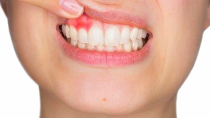 Áp xe quanh chóp răng biểu hiện với các tình trạng đau nhức, ghê răng, khó chịu