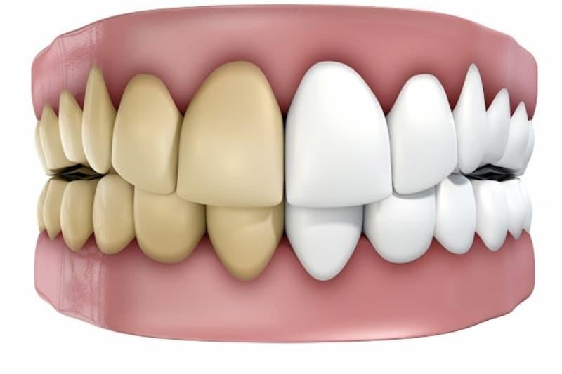 Áp xe quanh chóp răng là biểu hiện của tình trạng viêm nhiễm đã lan tới răng