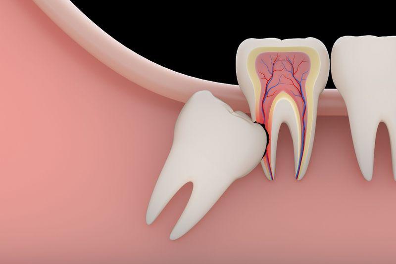 Chăm sóc răng miệng sai cách gây ra áp xe răng khôn.