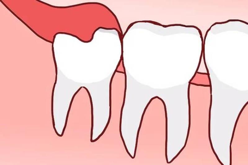 Trường hợp răng khôn của người bệnh mọc thẳng hàng, bị áp xe nhẹ sẽ không cần phải nhổ.
