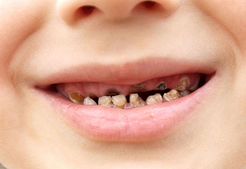 Sún răng là một bệnh lý răng miệng thường gặp ở trẻ em