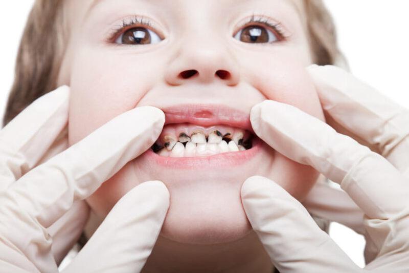 Bé bị viêm nha chu sẽ có nguy cơ mất răng vĩnh viễn nếu không được điều trị kịp thời