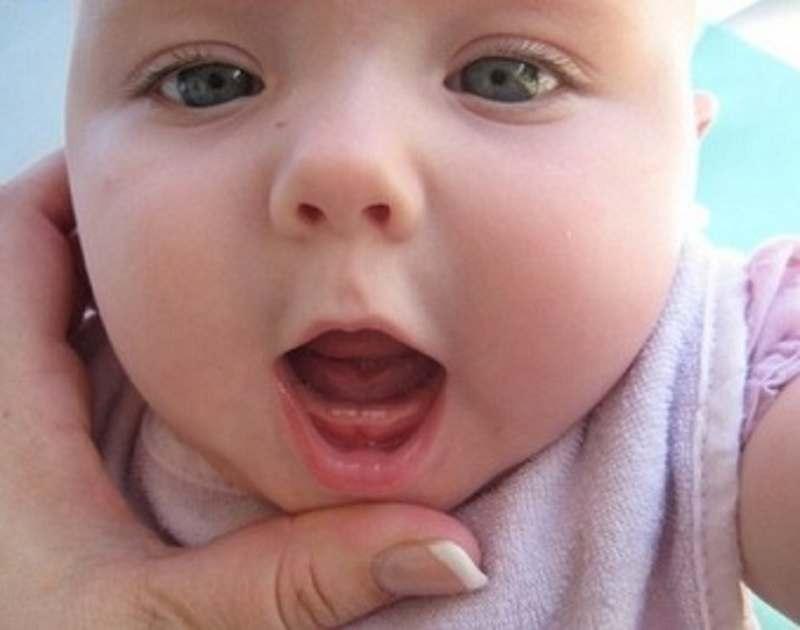 Suy tuyến giáp và hội chứng down có thể khiến bé chậm mọc răng.