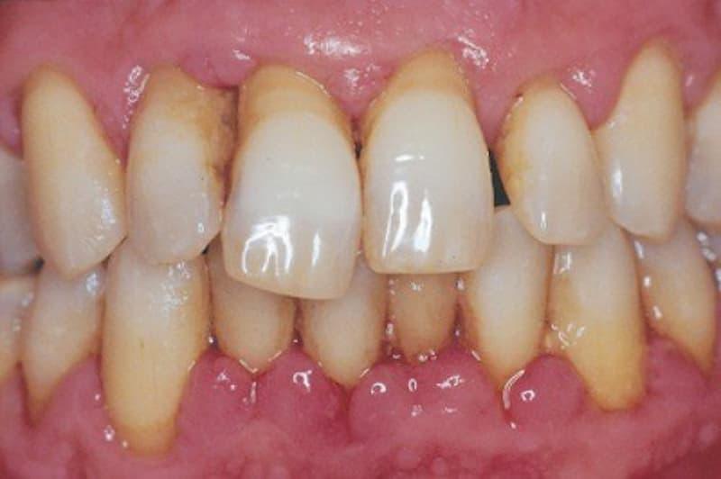 Với trường hợp bị viêm quanh răng cấp tính, bạn có thể bị sốt cao, môi khô, mệt mỏi, chảy máu chân răng, miệng có mùi hôi, đau răng, nhất là khi nhai.