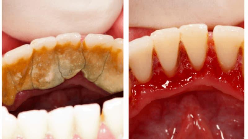 Cao răng hình thành mỗi ngày, mỗi giờ mà bạn không hề nhận ra.