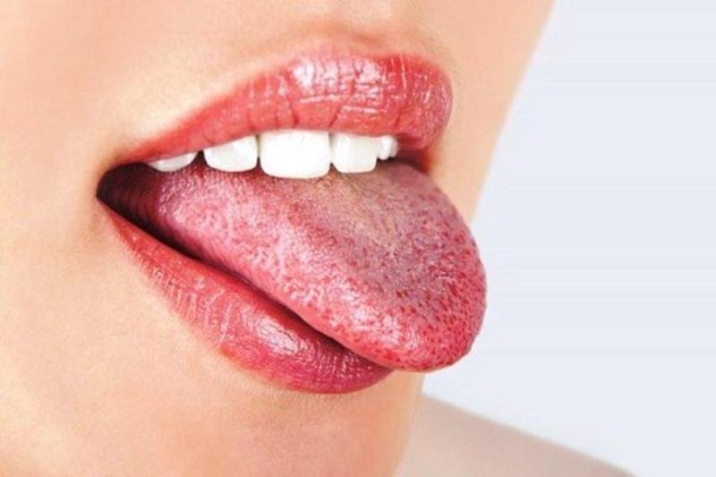 Mặc dù bệnh nấm miệng có thể xuất hiện ở bất kỳ ai nhưng thường xảy ra ở trẻ nhỏ và người già