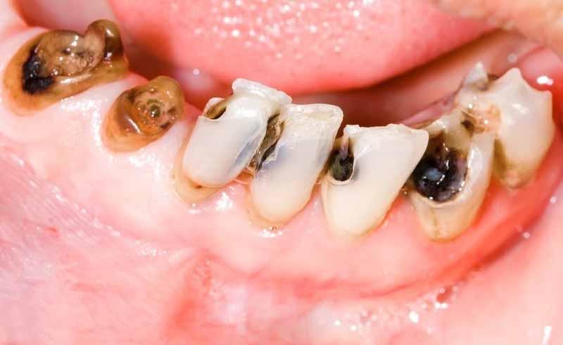 Ở giai đoạn này các lỗ sâu răng đã lớn. gây sâu răng lộ tủy