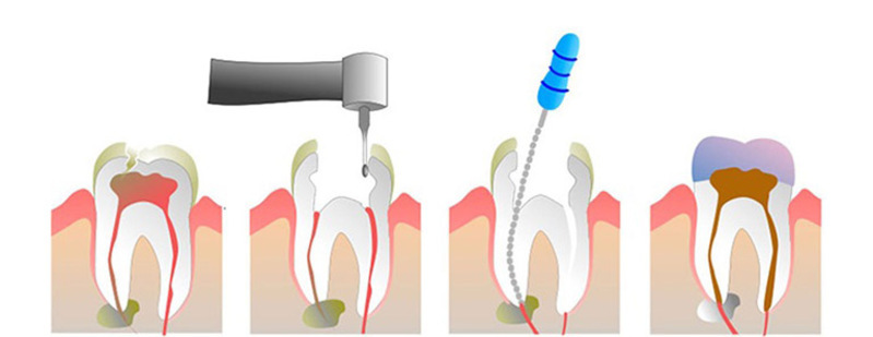 Các bước điều trị sâu răng vào tủy
