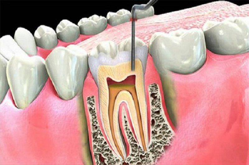 Phương pháp này nhằm bảo tồn được chân răng và loại bỏ hoàn toàn nguồn gây bệnh