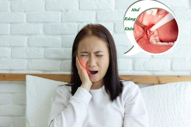 Ê buốt răng sau khi mọc răng khôn bạn cần chú ý