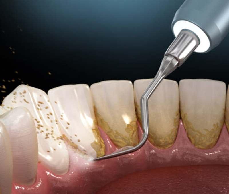 Bổ sung florua vào các khu vực nhạy cảm giúp giảm ê buốt răng sau khi cạo vôi.
