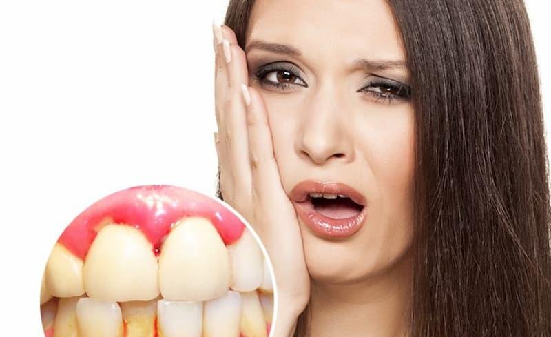 Hôi miệng chảy máu chân răng là tình trạng phổ biến ở cả nam và nữ