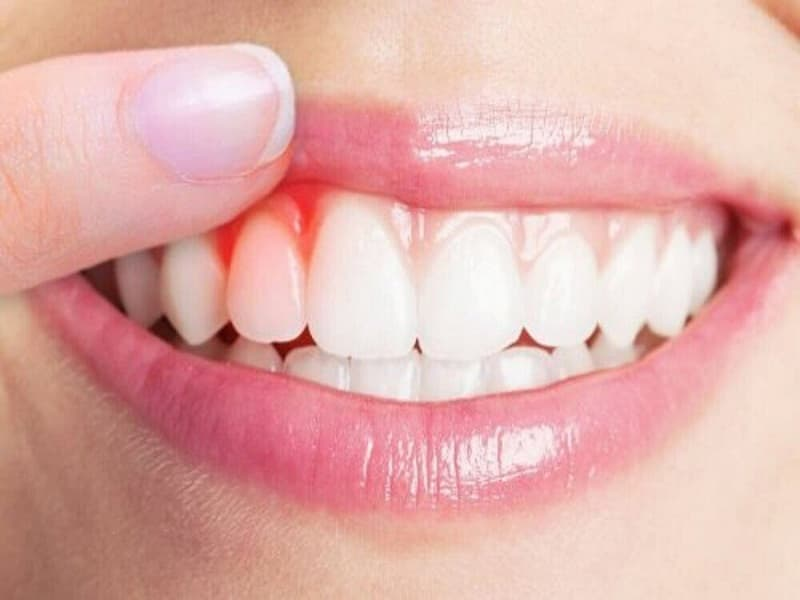 Nếu để stress kéo dài, bạn có thể đối mặt với rất nhiều nguy cơ liên quan đến răng miệng như chảy máu chân răng, hôi miệng, viêm lợi, viêm nha chu…