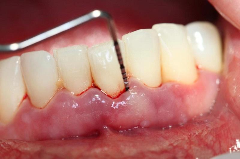 Viêm tủy, chảy máu chân răng,... là một trong những nguyên nhân gây bệnh áp xe răng