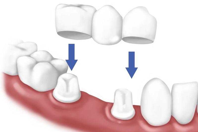 Cầu răng sứ là giải pháp khắc phục chức năng nhai khi bị mất 1 răng hoặc vài răng cạnh nhau.