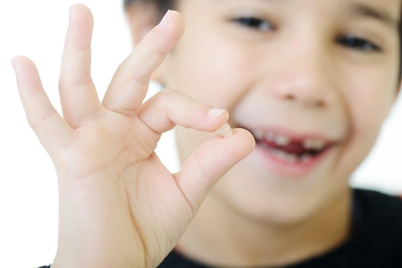 Cần lưu ý cách khắc phục tình trạng nhổ răng sữa sót chân răng ở trẻ