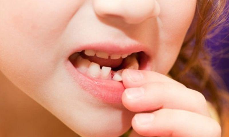 Răng sữa mọc lệch là như thế nào
