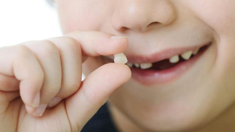 Nhổ răng sữa mọc lệch trong trường hợp nào