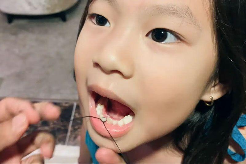 Nhổ răng mọc lệch có đau không
