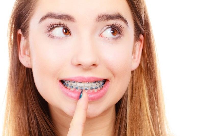 Niềng răng bao nhiêu tuổi là thích hợp nhất
