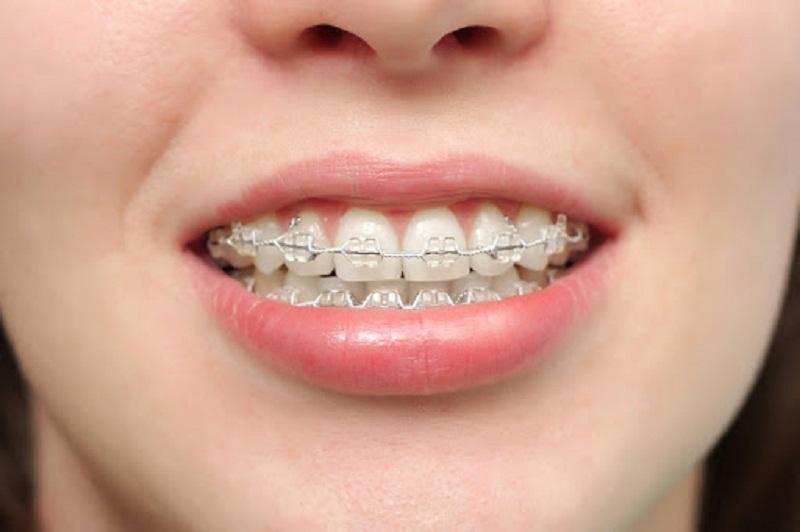Độ tuổi 16 hoàn toàn thích hợp để niềng răng bởi khi đó hệ răng đã có sự phát triển tương đối đầy đủ