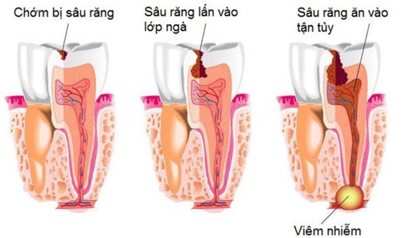 Quá trình sâu răng diễn ra trong khoảng từ 1 - 2 năm