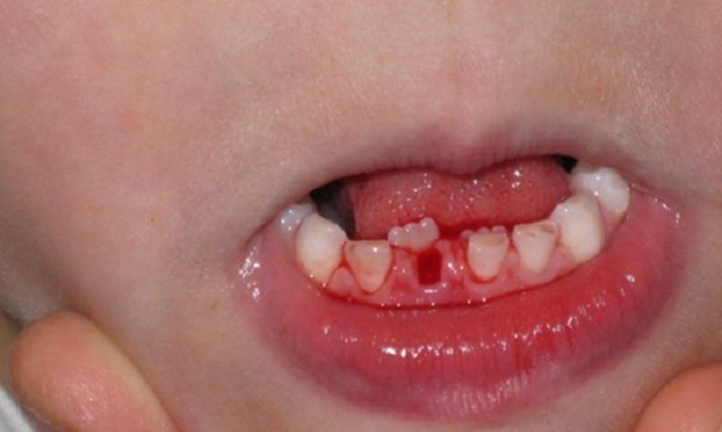 Nhổ răng không đúng cách sẽ có rất nhiều mối nguy hiểm và ảnh hưởng nghiêm trọng đến trẻ
