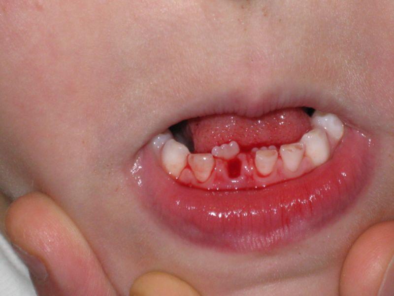 Có rất nhiều nguyên nhân khiến răng bé mọc lẫy
