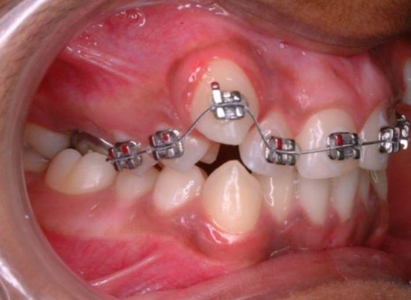 Xử lý răng trẻ mọc lẫy