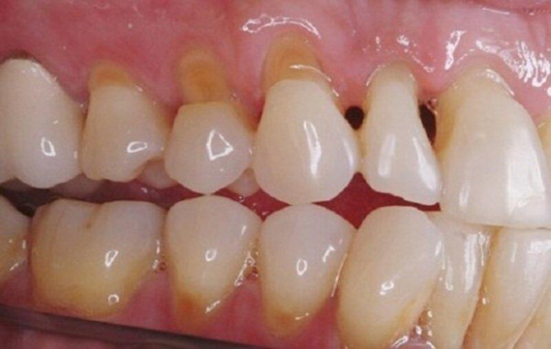 Đây là một trong những tình trạng sâu răng thông thường