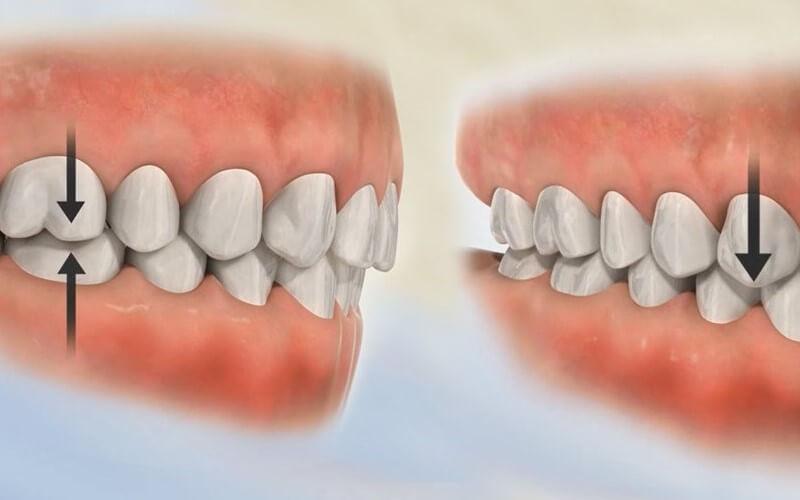 Bị ê răng sau khi bọc sứ một phần cũng do tổn thương khớp cắn