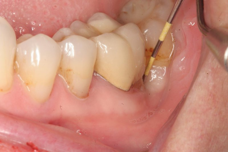 Người bị sâu khe răng thường gặp cản trở trong quá trình ăn uống hàng