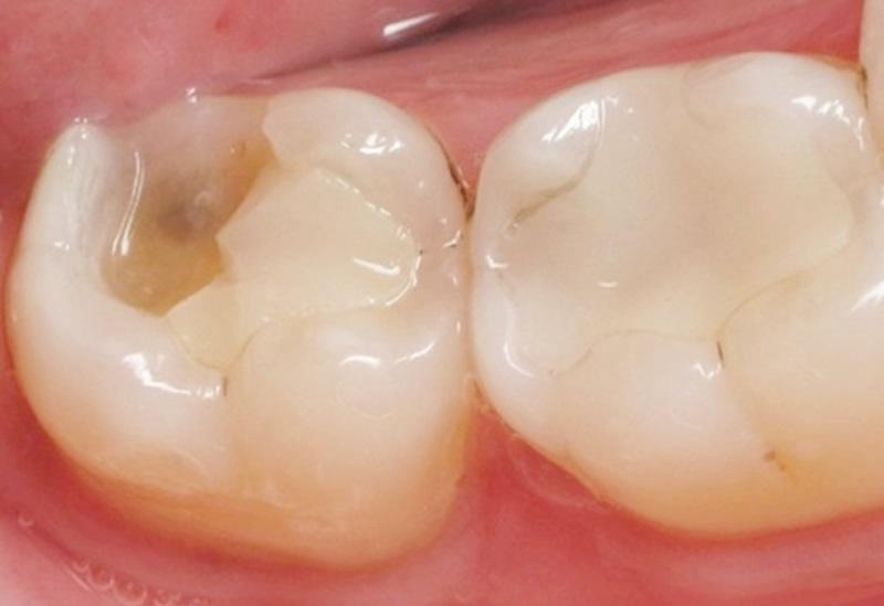 Nguyên nhân gây sâu răng hàm dưới trong cùng là việc người bệnh sử dụng phương pháp trám răng