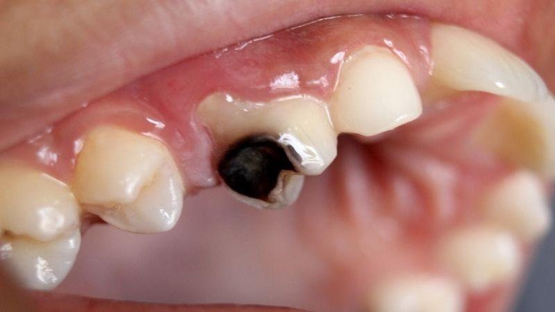 Sâu răng xuất hiện hạch ở cổ khiến người bệnh đau nhức, khó chịu