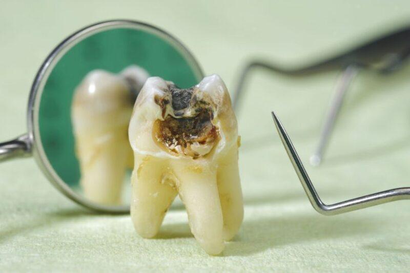 Đây là tình trạng sâu răng gây hại và axit tấn công làm bào mòn lớp men răng