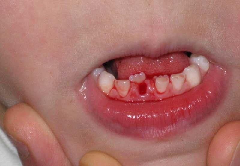 Trẻ nhổ bỏ răng sớm khiến răng vĩnh viễn có khả năng mọc lệch.