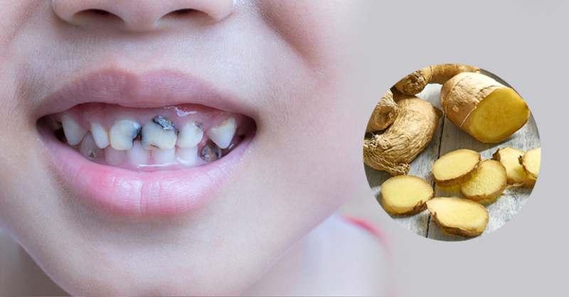 Gừng có khả năng kháng viêm sẽ giúp ích cho quá trình điều trị sâu răng.