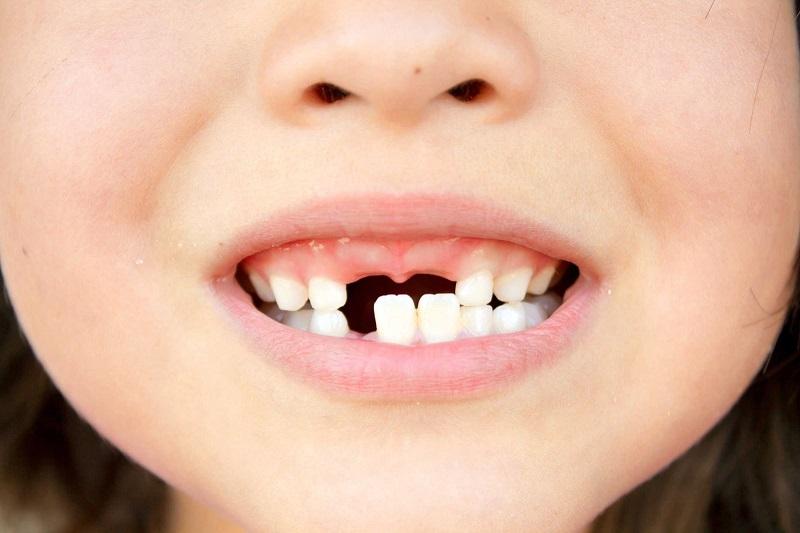 Có nhiều nguyên nhân gây sún răng cửa ở trẻ nhỏ