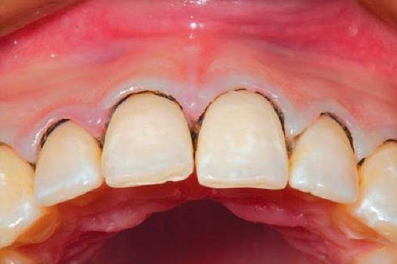 Mảng bám xuất hiện nhiều trên răng gây ra viêm nướu răng.