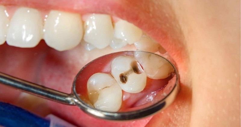 Trị sâu răng cho bé bằng phương pháp trám răng được chỉ định khi sâu răng ở mức độ nhẹ