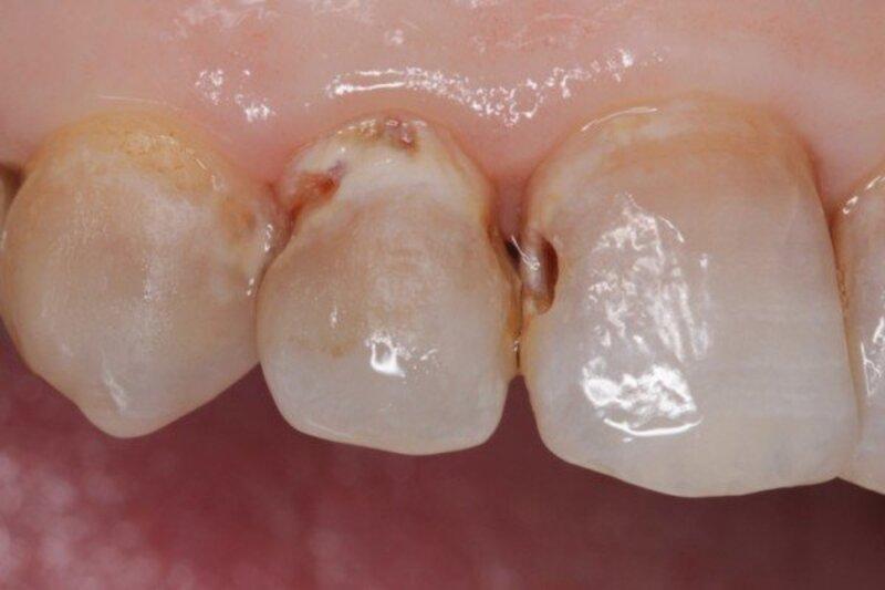 Sau khi bị sâu men răng thì đây là giai đoạn nặng hơn khi người bệnh bắt đầu tiến tới bị sâu ngà nâu