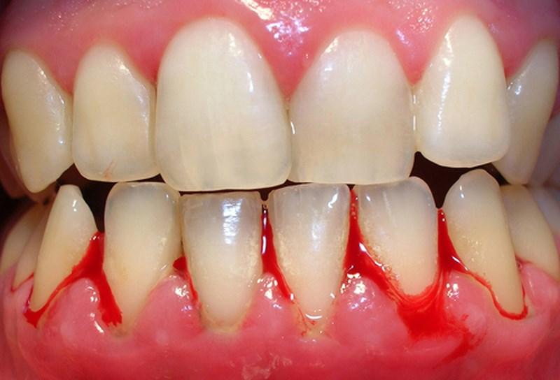 Răng dễ bị nhạy cảm và xuất hiện tình trạng chảy máu chân răng