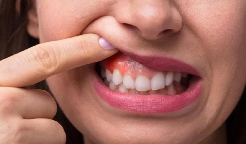 Viêm lợi khiến người bệnh nổi hạch ở quanh hàm, cổ, chân răng, lợi.