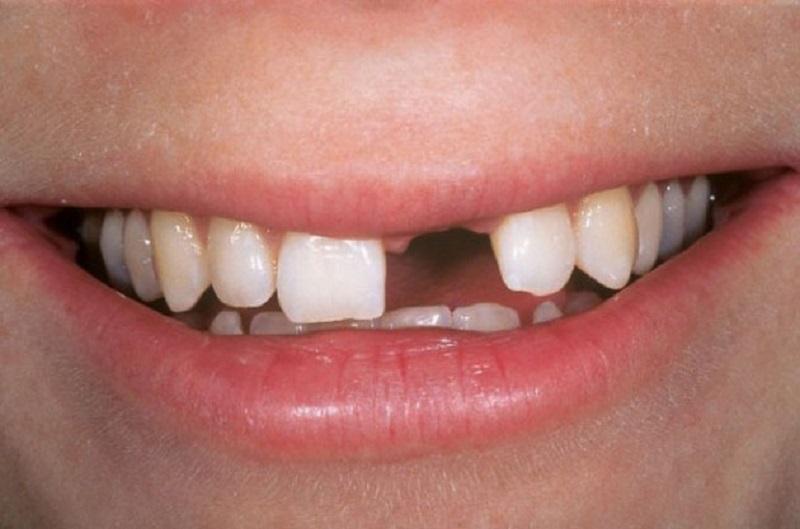 Viêm lợi nổi hạch có nguy cơ gây mất răng