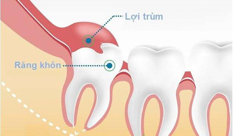 Răng khôn là vị trí dễ bị lợi trùm hơn so với răng ở những vị trí khác